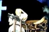 Lady Gaga suffers a concussion