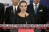 Angelina Jolie undergoes preventive surgery