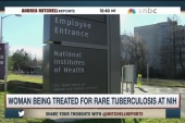 Hundreds may have been exposed to TB