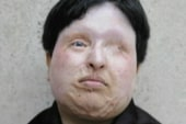 Iranian acid victim pardons attacker