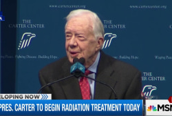 Pres. Carter to begin radiation treatment