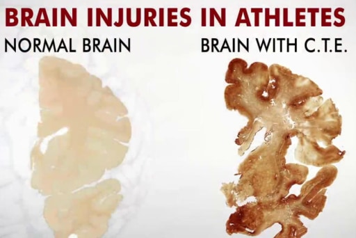 Concern grows over football and brain injury