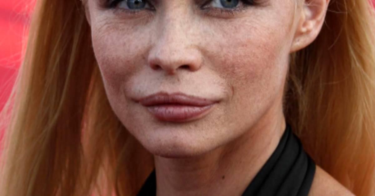 Actress Decries Botched Plastic Surgery