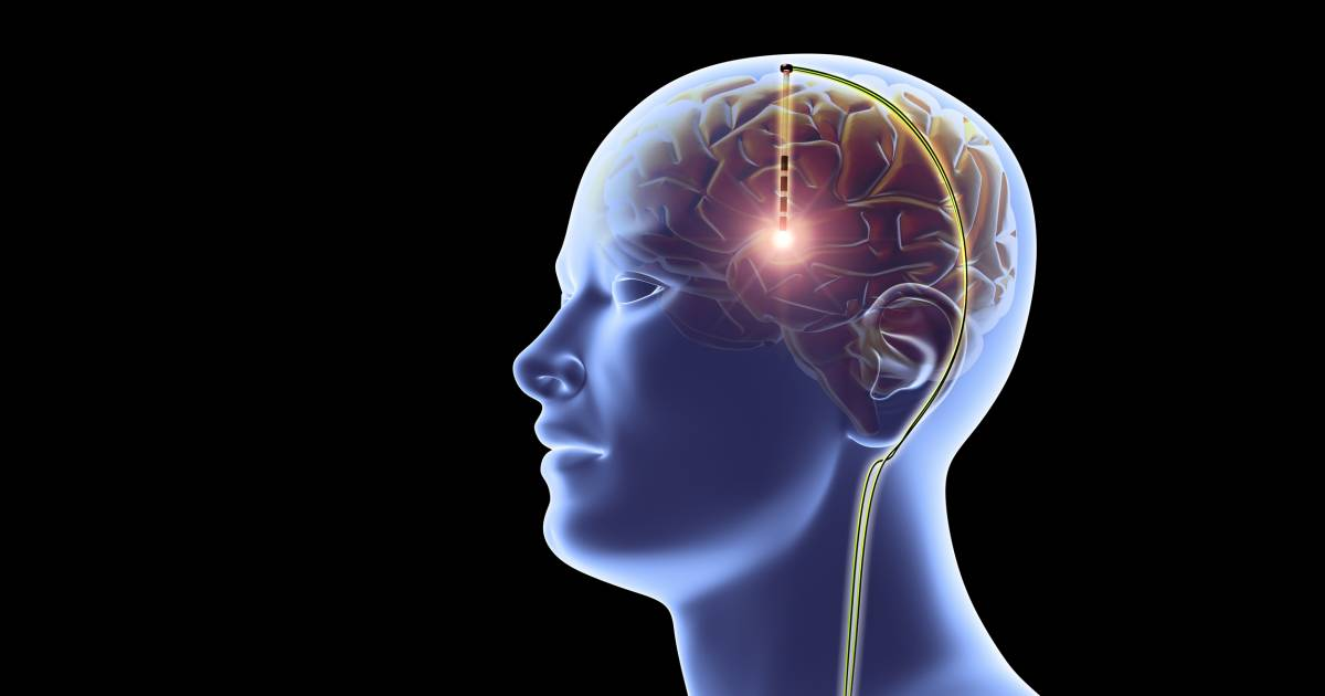 Memory Boosting Brain Implants Are In The Works Would You Get One