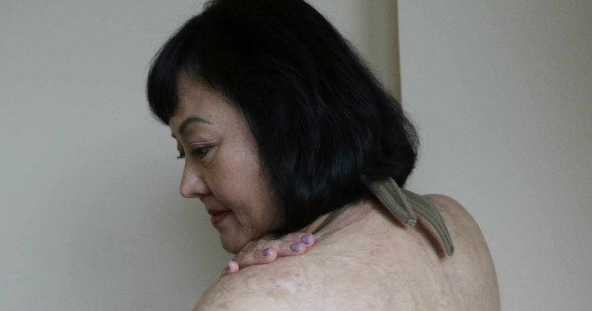 New laser treatment aims to ease pain of Vietnams Napalm