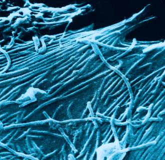 Image: A scanning electron micrograph depicts a number of Ebola virions