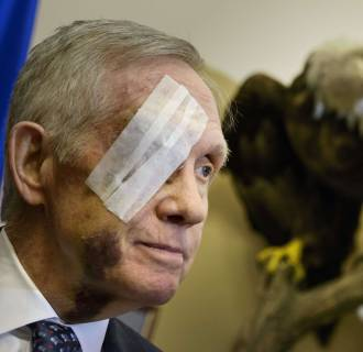 Image: US-POLITICS-REID-INJURY