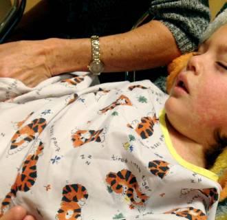 Image: measles