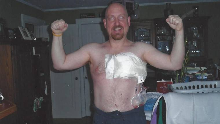 This man is speaking out to raise awareness about male breast cancer