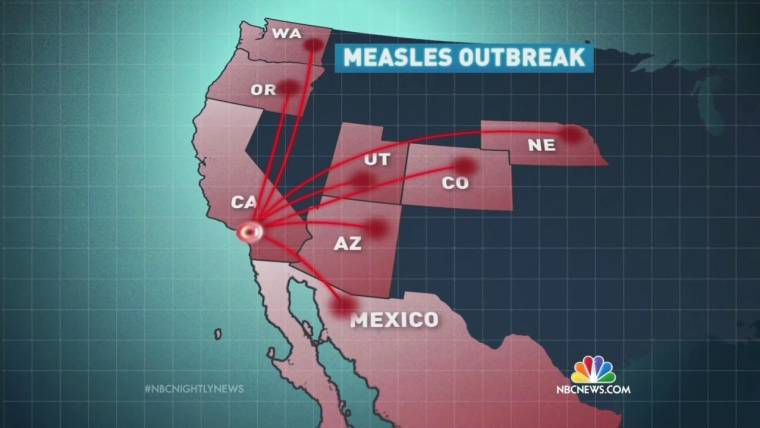 Even One Vaccination Works: Five Things To Know About Measles