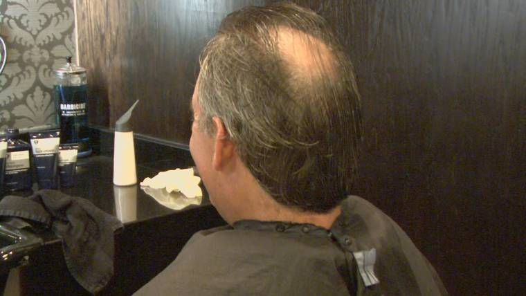 Autoimmune Drugs May Treat a Form of Baldness
